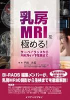 乳房MRIを極める!